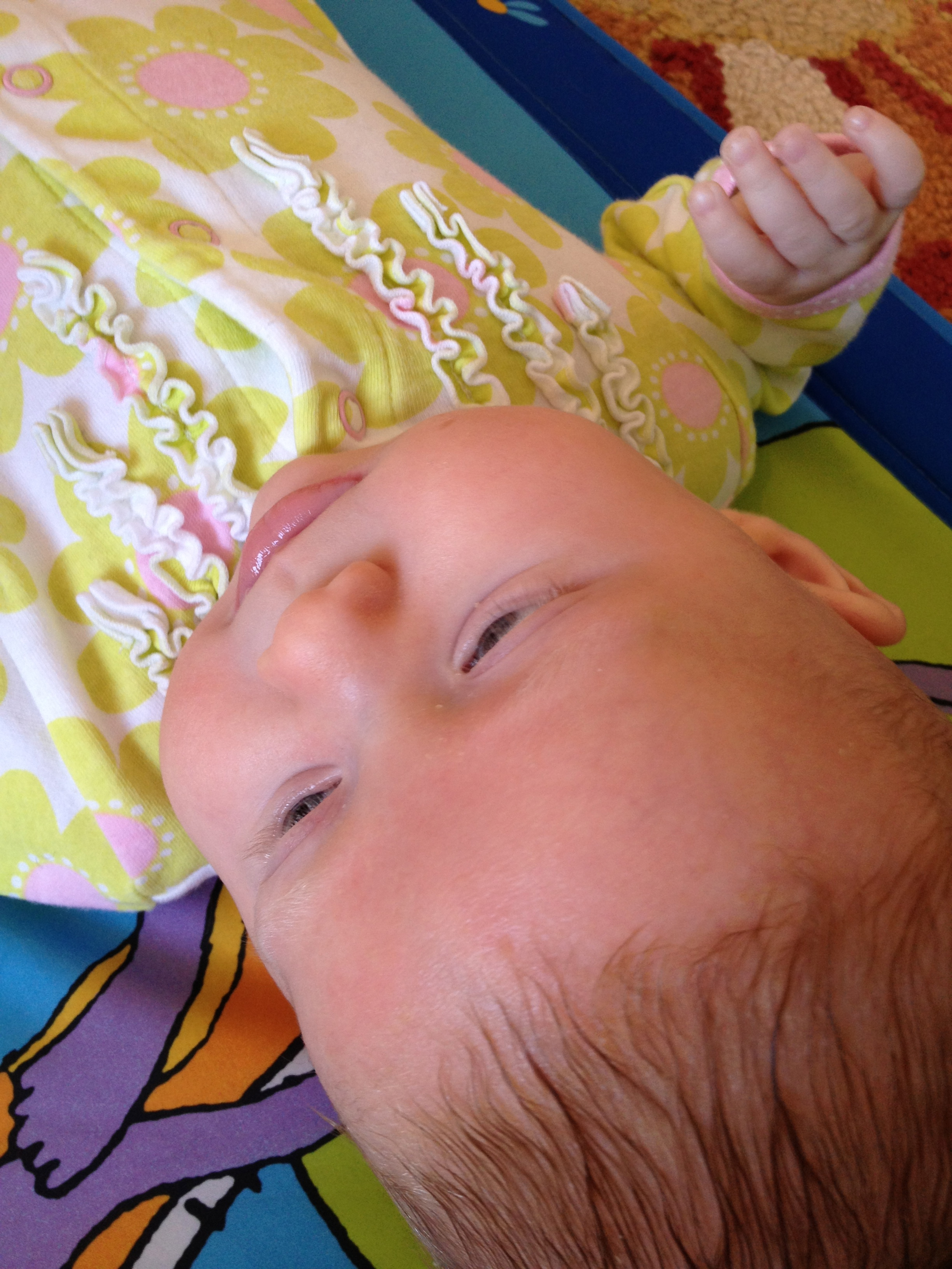 how to get rid of cradle cap on eyebrows